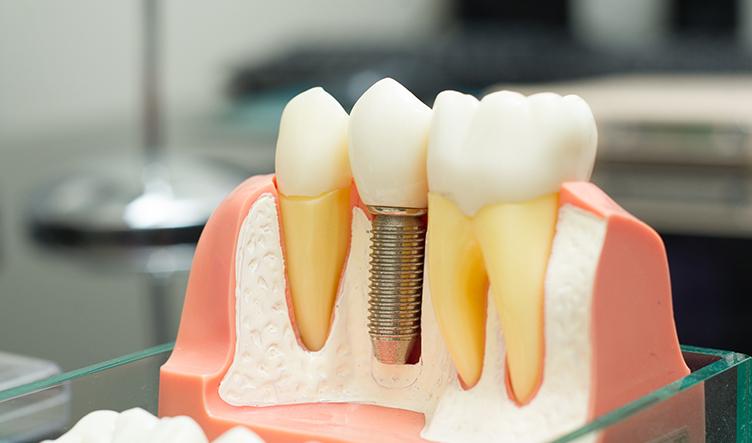 ICRT植牙難症轉診中心-齒模